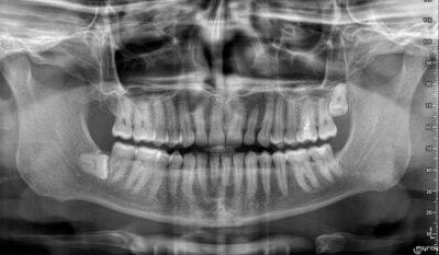 Cordales-Terceros-molares
